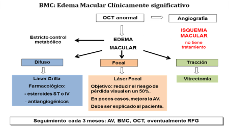 Edema Macular  (Figura 5)